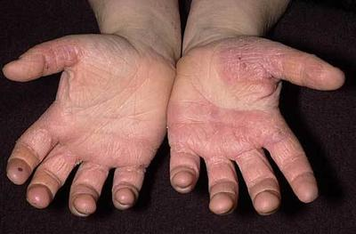 Illustration of Hands Hurt After Donor?
