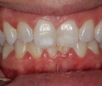 Illustration of Pain In The Teeth After Patching?