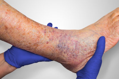 Illustration of Treatment Of Wounds In The Legs?