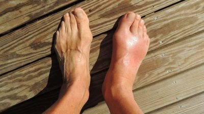 Illustration of How To Deal With Gout?