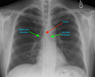 Illustration of Explanation Of Lung X-Ray Examination Lab Results?