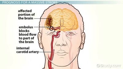 Illustration of First Aid When A Stroke Sufferer Falls?