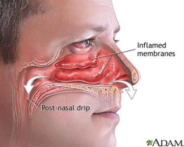Illustration of When Runny Nose Runny Looks Sticky?