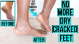Chapped Feet And How To Overcome?
