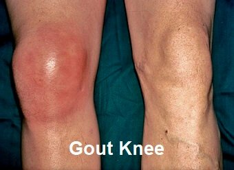 Illustration of How To Deal With Swollen Knees Due To Gout?