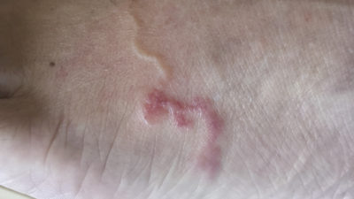 Illustration of How To Deal With Cutaneous Larva Migrans (CLM)?