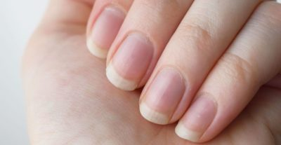 Illustration of How To Deal With Nails Do Not Grow?