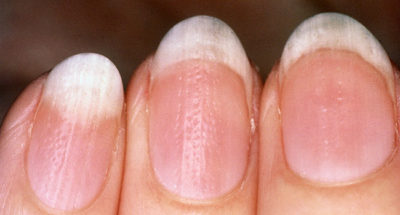 Illustration of Nails Have White Spots And Tinge?