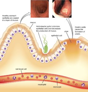 Illustration of Use Of Nausea, Vomiting For Digestive Tract Infections?