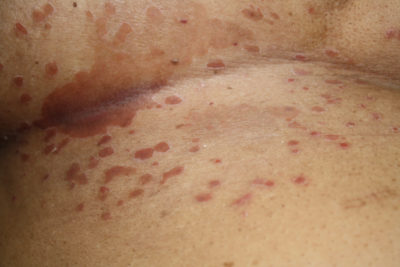 Illustration of Leucorrhoea Is Accompanied By Blood Spots After Using Antifungal Drugs?