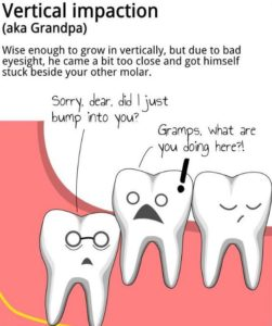 Illustration of How Long Does Wisdom Teeth Grow Perfectly?