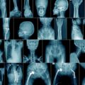 Do I Need An X-ray Examination At The Time Of The Accident?
