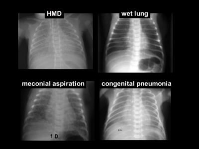 Illustration of Causes Of Wet Lung Disease?