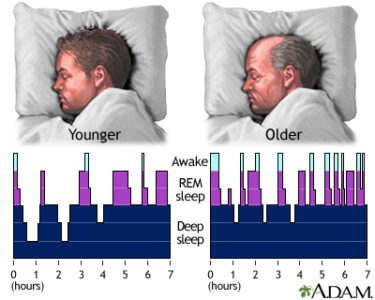 Illustration of Frequent Sleepiness Is Narcolepsy?