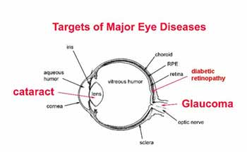 Illustration of Causes Of Shortsighted Eyes After An Accident From A Motorcycle?