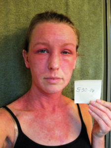 Illustration of The Skin Turns Redder After Taking Medication And Using A Doctor's Cream?