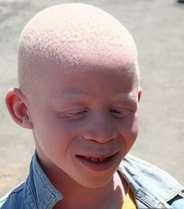 Illustration of Is Albino A Disease?