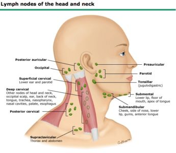 Illustration of Swollen Lymph Glands That Are Shaped Like Veins?