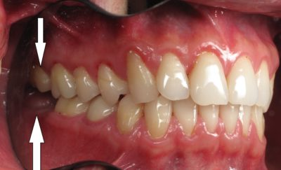 Illustration of The Right Molars Have Come Off?