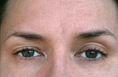 Illustration of Eyelid Drops Next To What Is Ptosis?