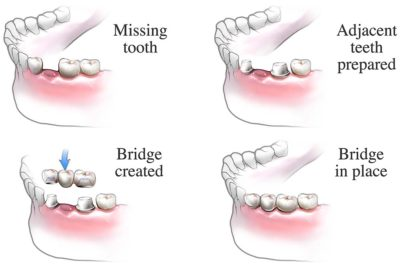 Illustration of Place The Teeth?