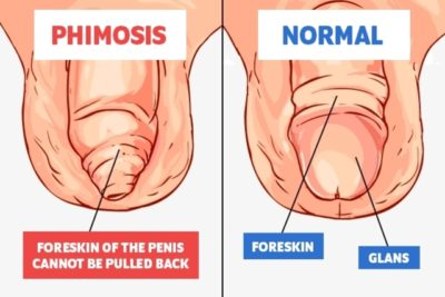 Illustration of Causes And Treatment For Phimosis?