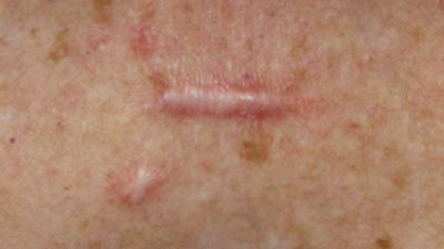 Illustration of The Cause Appears Brown Spots On The Skin To Festering?