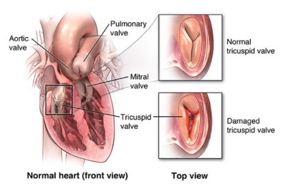 Illustration of Causes Frequent Shortness Of Breath After Heart Ring Insertion Surgery?