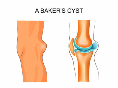 Illustration of Causes And Treat Baker Cysts?