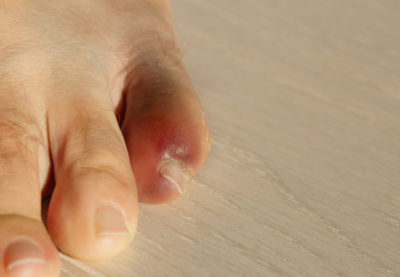 Illustration of The Pinky Toe Is Bruised Until It Is Swollen?