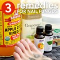 Remedy For Dead Nails?