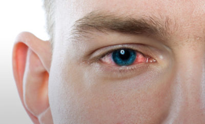Illustration of The Use Of Antibiotics In The Eye?