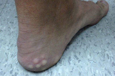Illustration of How To Deal With White Bumps Around The Toes?