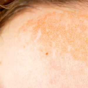 Illustration of Causes Of Black Spots On A Child's Face After Taking Medication, Is It Allergic?