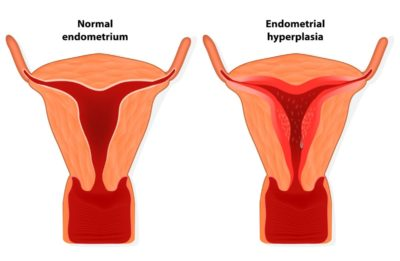 Illustration of The Cause Of The Thickening Of The Uterine Wall?