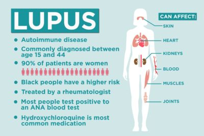 Illustration of Overcome Prolonged Fever In People With Lupus?