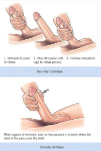 Illustration of Cum Out Without Any Stimulation?
