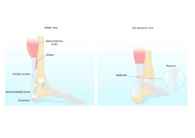 Illustration of How To Get The Child Back To Normal After Tendon Grafting Surgery?