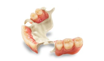 Illustration of Use Of Removable Dentures For A Full Day?