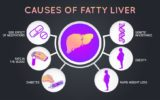 Causes And Treatment For Liver Disorders?