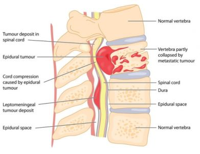 Illustration of Symptoms And Treatment Of Spinal Tumors?