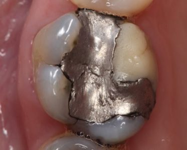 Illustration of Treatment Of Patched And Broken Molars?