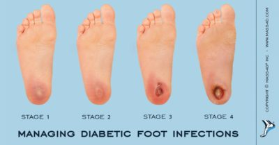 Illustration of Causes Of Diabetic Ulcers?