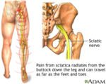 Sciatica And Pain When Held In The Bones After An Accident?
