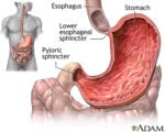 Gastric Acid Rises From The Stomach To The Esophagus?