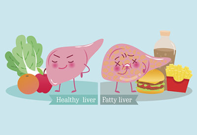 Illustration of Can Excess Protein Cause Liver Disease?