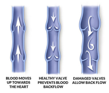 Illustration of Causes And Ways To Overcome The Veins That Appear On The Penis?