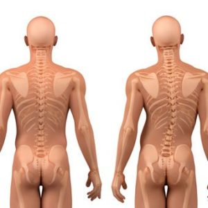 Illustration of Causes And Ways To Cure Scoliosis?