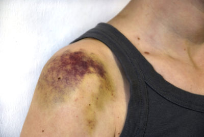 Illustration of Lump On The Arm After Falling?