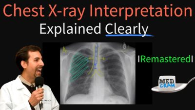 Illustration of Explanation Of The Results Of X-rays In Children Aged 4 Years?